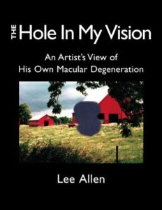 The Hole In My Vision: An Artist's View of His Own Macular Degeneration